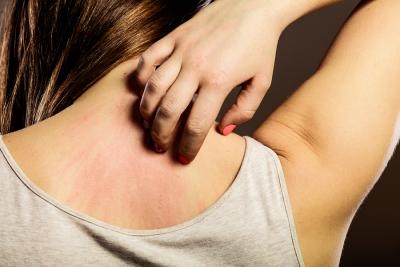 polyester allergy rash